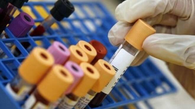 analisi_del_sangue.jpg