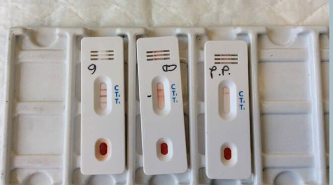 test sierologico analisi coronavirus laboratori